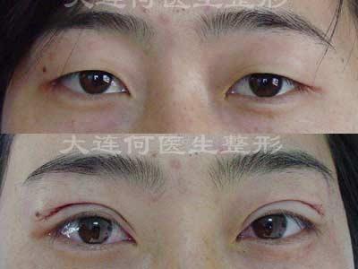 切开法重睑术 双眼皮手术 术前术后 大连何医生整形手术实例 -特色项