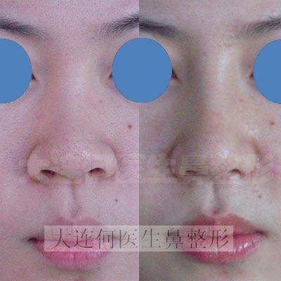 鼻翼缩小,膨体隆鼻,鼻头整形术前 鼻翼缩小,膨体隆鼻,鼻头整形术后