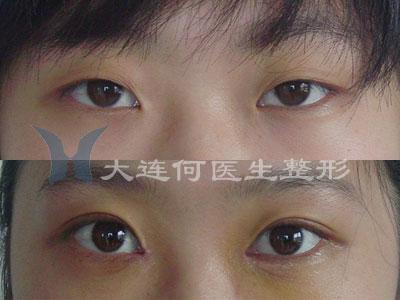 双眼皮手术 开眼角手术术前术后对比照片