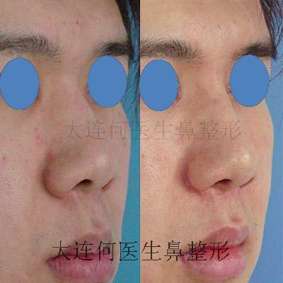 膨体隆鼻,鼻尖延长,修鼻翼 鼻翼缩小缩薄 ,下颌整形前后对比照片