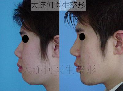 膨体隆鼻,鼻尖延长,修鼻翼(鼻翼缩小缩薄),下颌整形前后对比照片