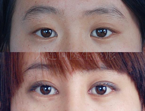 双眼皮手术后开眼角_何医生开眼角手术实例********_开眼角吧_百度贴吧