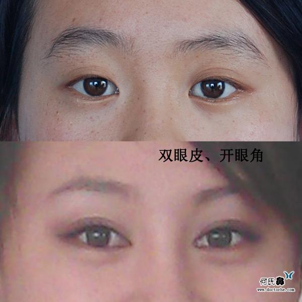 韩式双眼皮手术,开眼角手术280608,隆鼻手术,隆下颌手术211108术