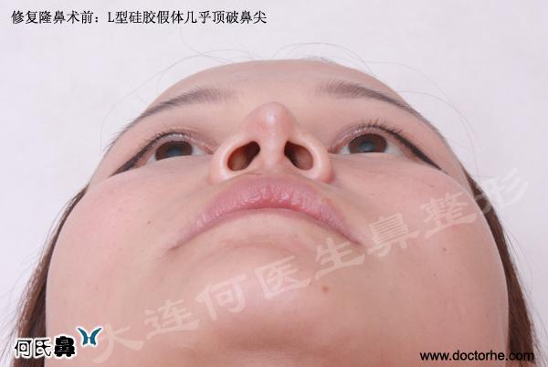美联体首例失败隆鼻修复手术案例由何栋良医生实施