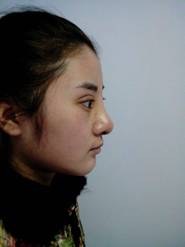 何氏鼻手术案例茜茜的华丽蜕变