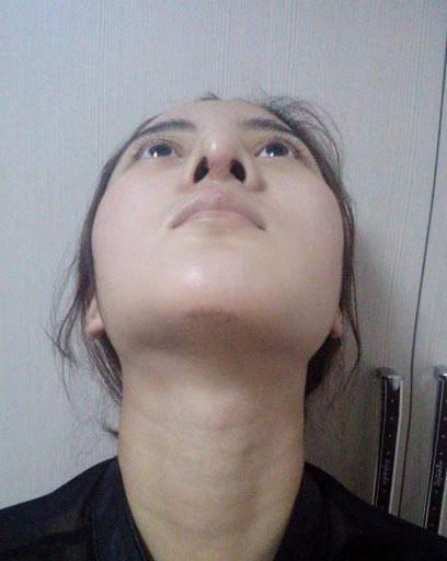 何氏鼻手术案例茜茜的美丽蜕变术后疤痕情况