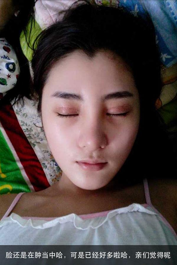 何氏鼻手术案例,茜茜的美丽蜕变