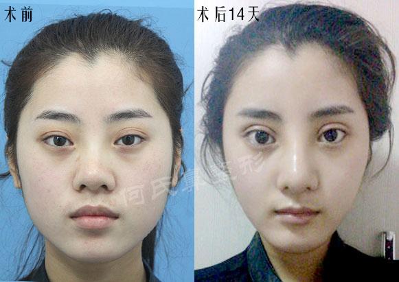 何氏鼻手术案例茜茜的美丽蜕变