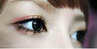 韩式微创双眼皮是终生的吗