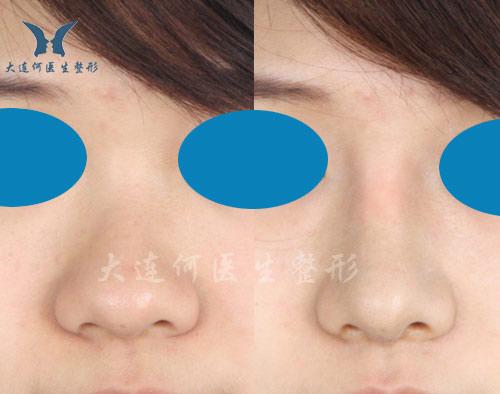 何氏鼻鼻综合整形(膨体隆鼻,鼻头缩小抬高)术前术后两周对比照片