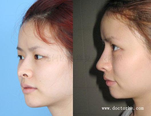 何氏鼻失败硅胶隆鼻修复,L型硅胶假体几乎顶破鼻尖