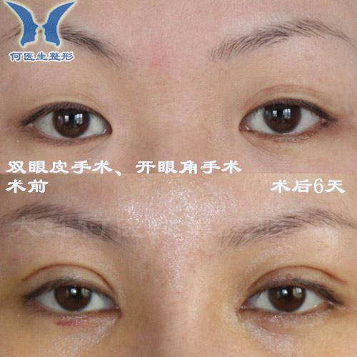 双眼皮手术,开眼角手术术前术后对比照片010310