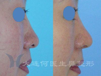 修鼻头,缩小鼻翼术前术后对比照片