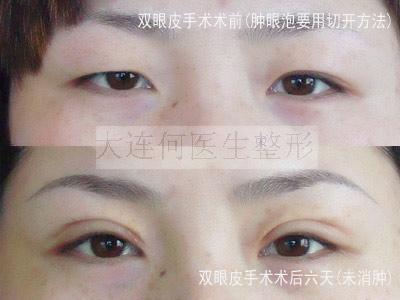 切开法双眼皮手术需要多久才能恢复自然