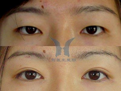 切开法双眼皮手术前后对比照片