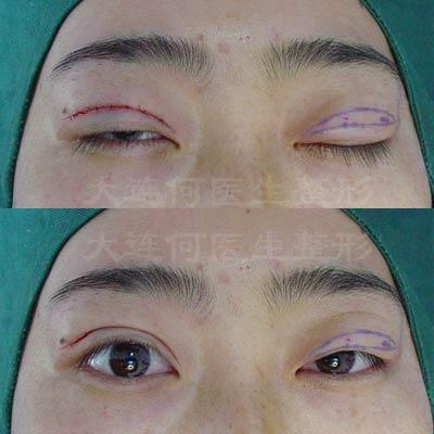 切开法双眼皮手术全过程